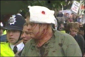 A bloodied pro-hunt supporter after clashes with police outside parliament